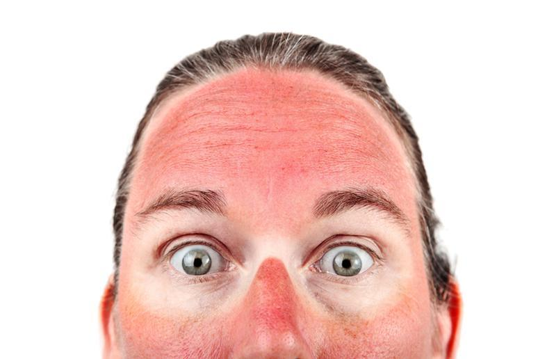 This is What You Should Never Do If You Get Sunburn