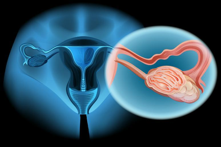 Ovarian cancer is treated most effectively when detected early
