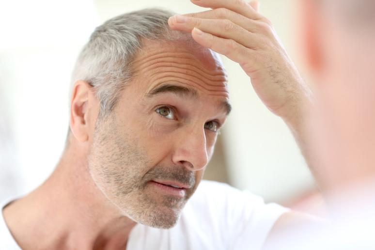 Cold temperature causes hair loss