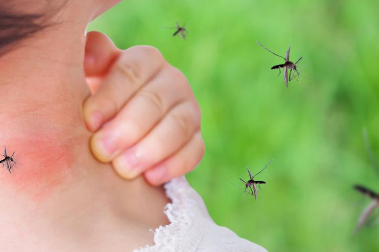 How to Treat Mosquito Bites | The Active Times