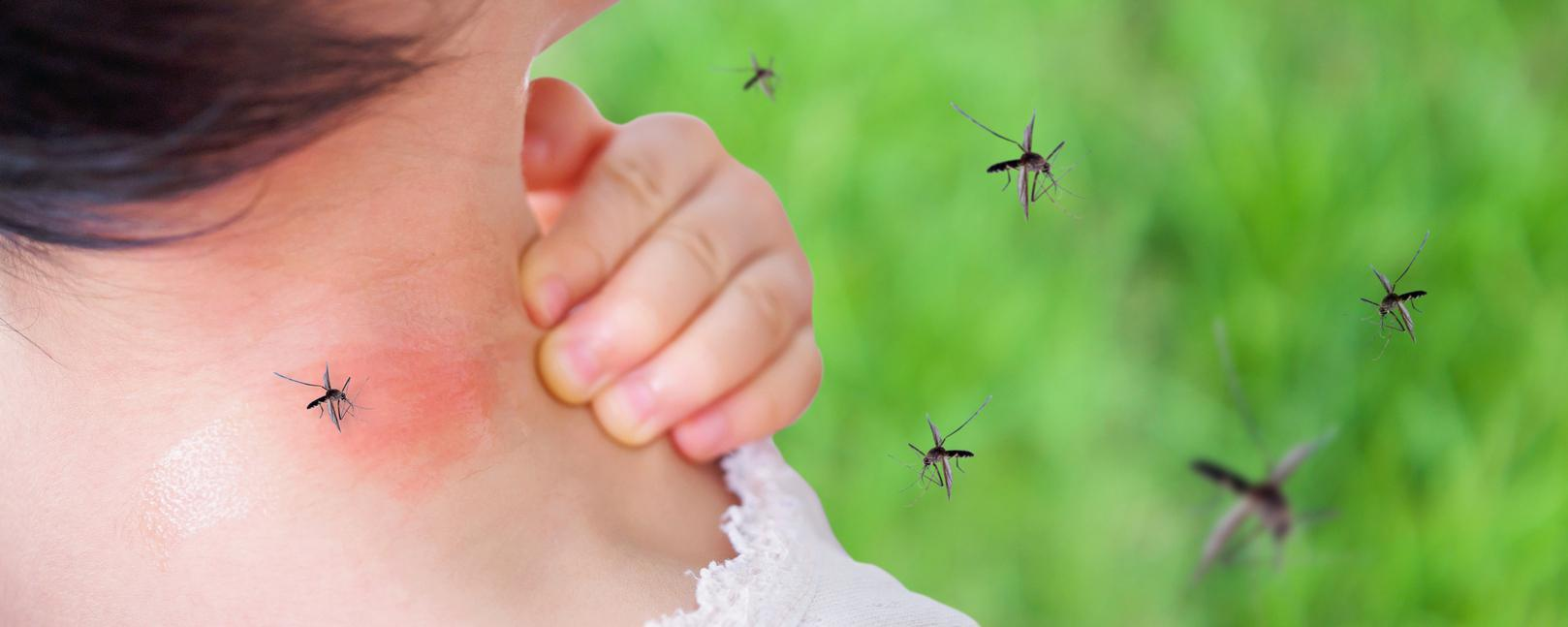 How To Treat Mosquito Bites The